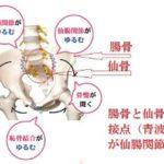腰痛のタイプ